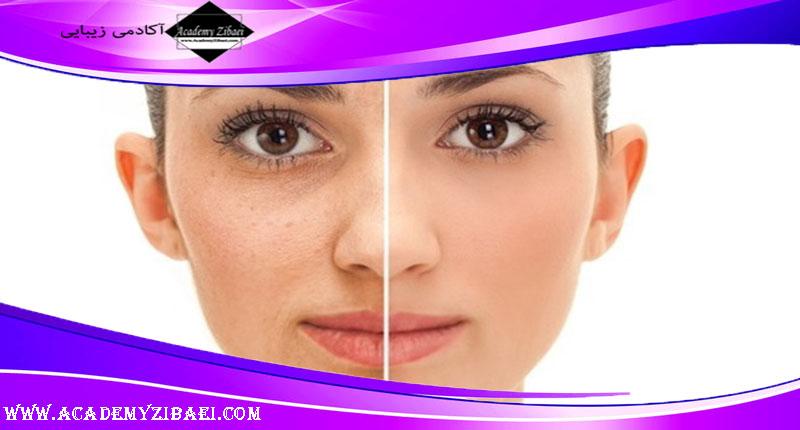 تاثیر گلوتاتیون برای سفید کردن پوست