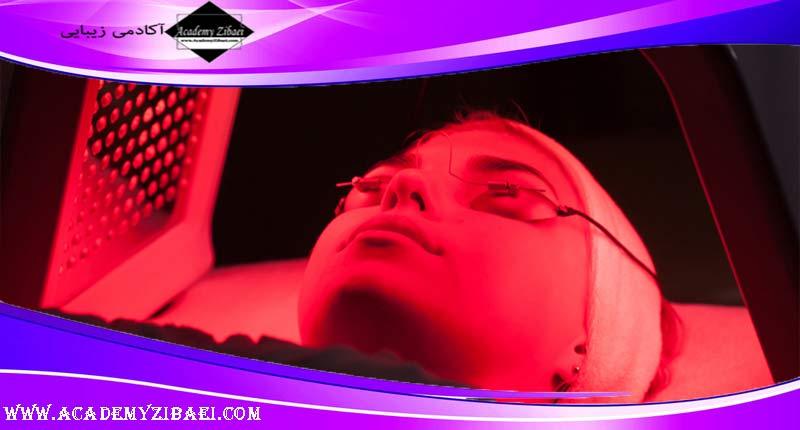 درمان آکنه با نور درمانی