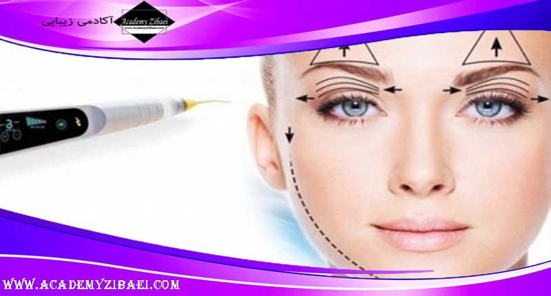 درمان افتادگی پلک با پلکسر یا PLEXR