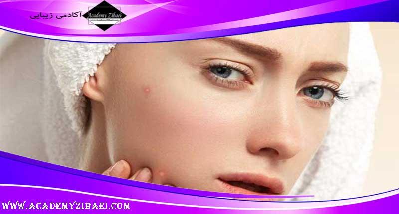 درمان ساده جوش از روی پوست چرب
