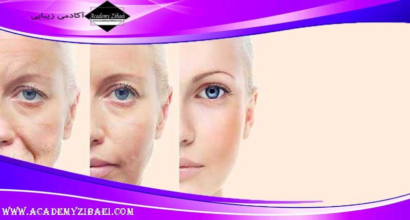 درمان چین و چروک صورت با پلکسر PLEXR