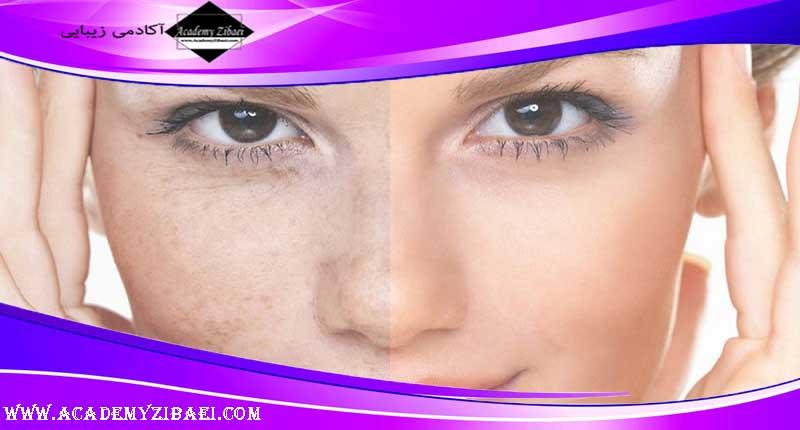 روش های خانگی از بین بردن رنگدانه های پوستی