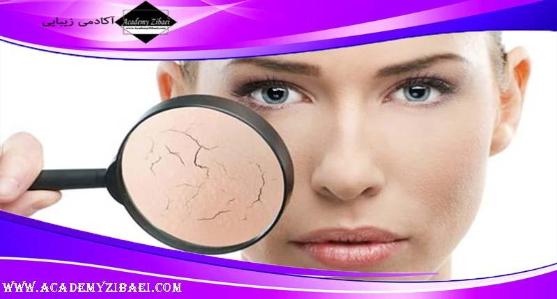 روش خانگی مرطوب کردن پوست روغنی