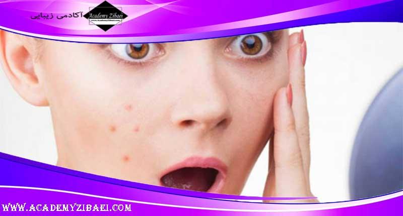روش های خانگی درمان جوش حرارتی