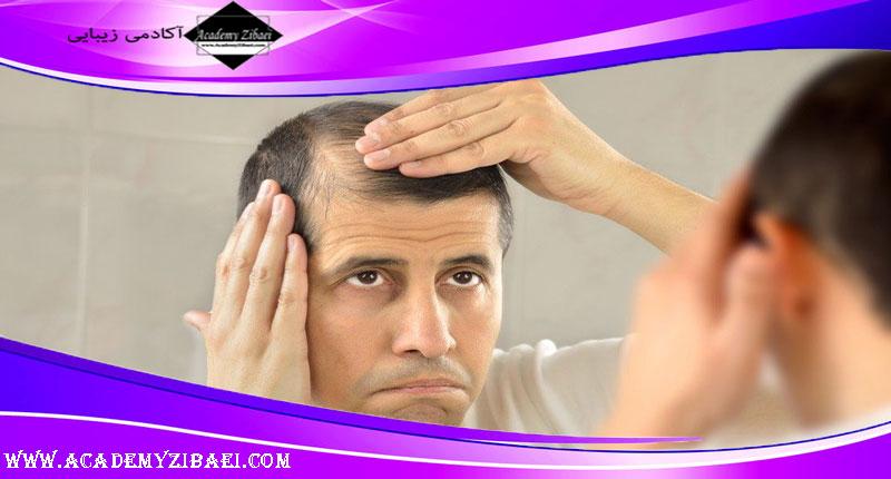 روش های جلوگیری از ریزش مو در آقایان