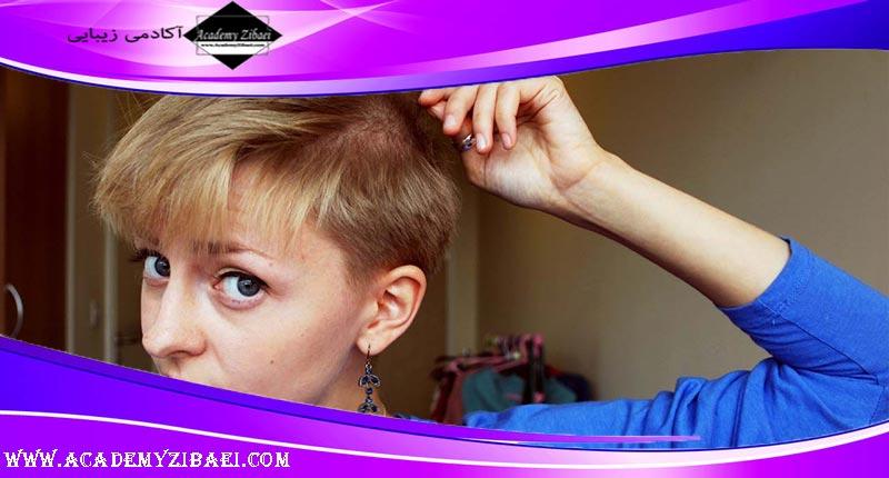 علل و درمان آن اختلال کندن موی سر