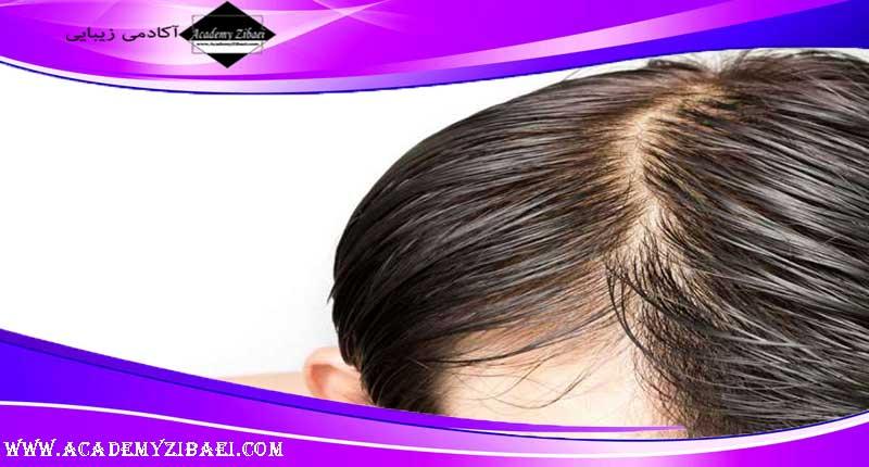راه های خلاص شدن از موهای چرب
