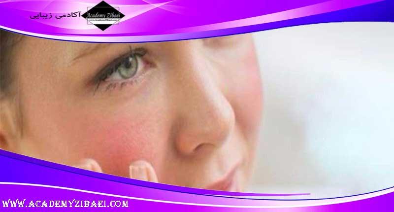 پنج ماسک صورت خانگی برای پوست حساس