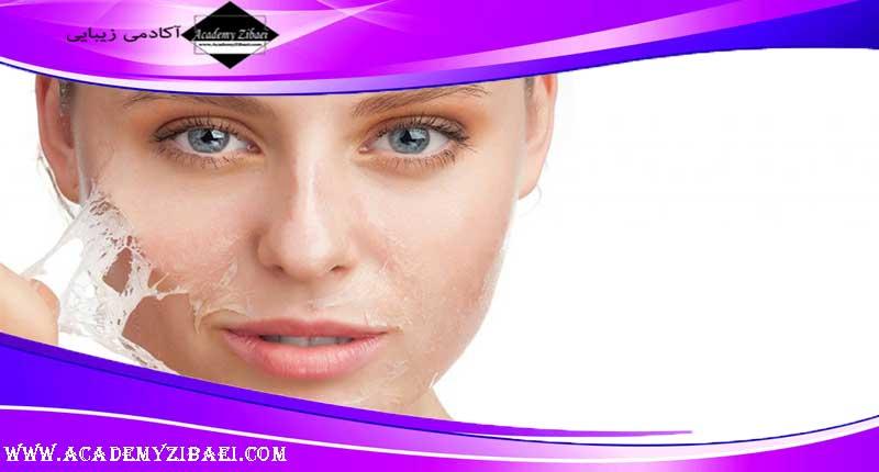 علت و درمان پوسته شدن پوست صورت