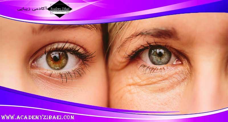 درمان خانگی خشکی پوست دور چشم -بخش اول