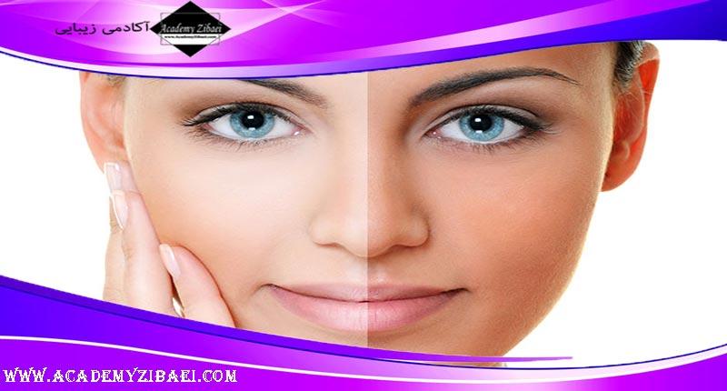 چند روش ساده پاک کردن برنزه از پوست
